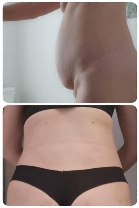abdominoplastie-tunisie-avant-après