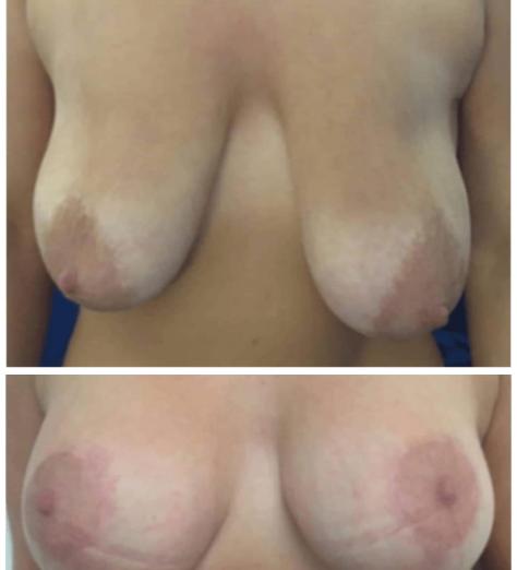 lifting-des-seins-avant-après1