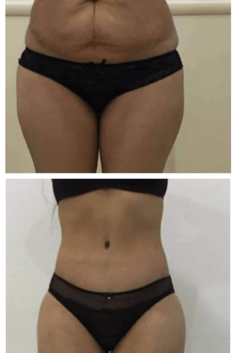 plastie-abdominale-avant-après